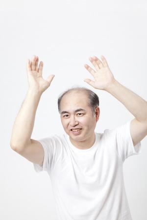 thinning: Dance thinning hair men