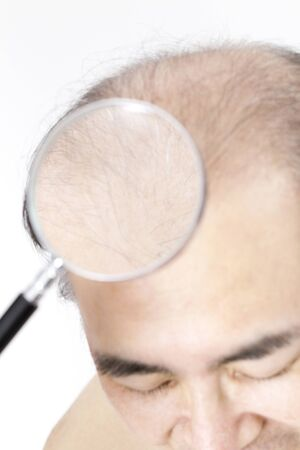 Thinning hair can be examined by magnifying glass man