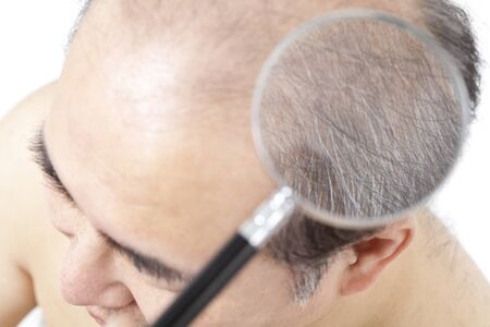check ups: Thinning hair can be examined by magnifying glass man
