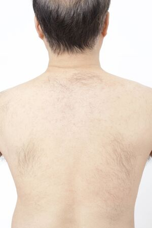 esthetic: Middle-aged male body hair