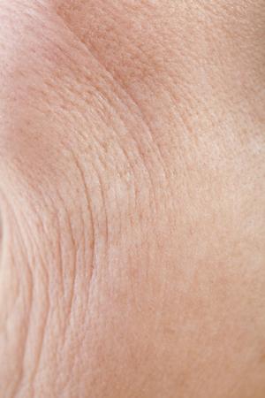 cheek to cheek: The skin of the cheek of senior woman Stock Photo