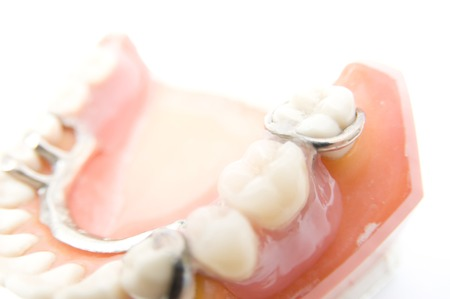 partial: Model of Partial Dentures