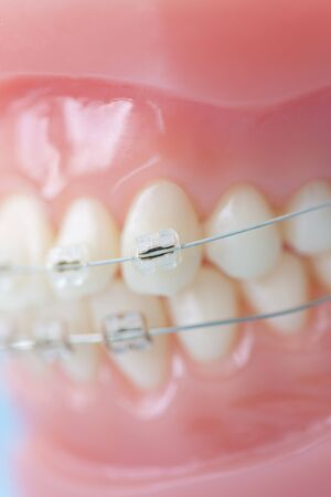 orthodontic: Model of teeth with orthodontic appliances Stock Photo