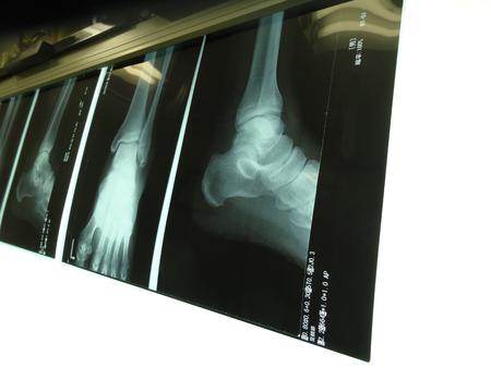 fractura: La radiograf�a de la fractura de tobillo Foto de archivo
