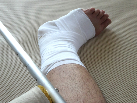 fractures: Gibbs of ankle fractures