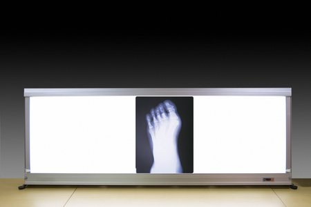 radiographic: Foot radiographic