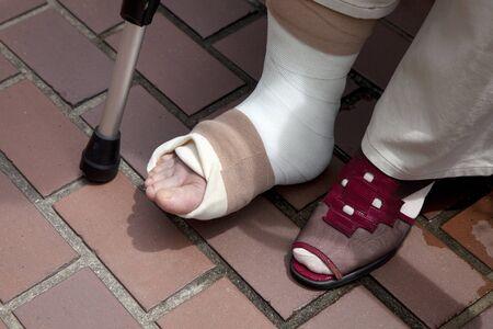 foot care: The broken leg Stock Photo