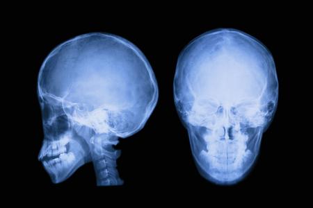 X-ray of the brain 写真素材