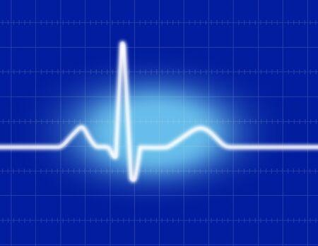electrocardiogram: Electrocardiogram Stock Photo