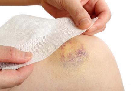hematoma: Preparing a bandage wrapped on injured knee
