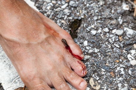pijawka: tropical leech biting human foot on street beside asian rainforest