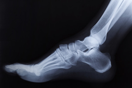 broken foot: Broken right foot ankle Xray, side view Stock Photo