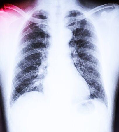 luxacion: X-Ray imagen de la pel�cula dislocaci�n de hombro