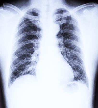 X-Ray film image dislocation of Shoulder