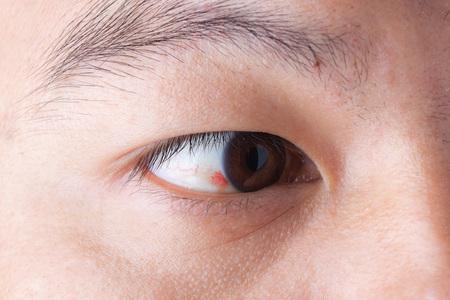 hemorrhage: Close up of ubconjunctival hemorrhage in eye