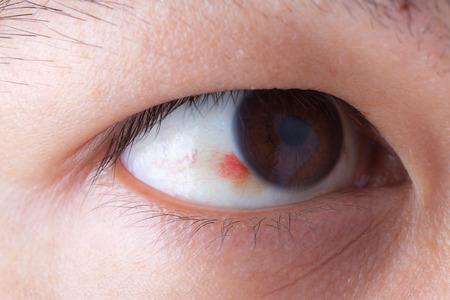 hemorragia: Primer plano de una hemorragia en el ojo ubconjunctival