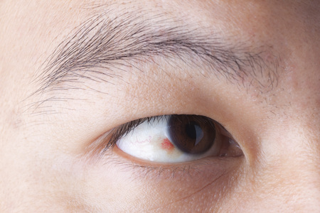 Close up of ubconjunctival hemorrhage in eye