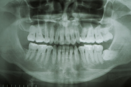 severely: Dental X-Ray. A panoramic x-ray of a mouth, with intact wisdom teeth, one of which is severely impacted. Stock Photo