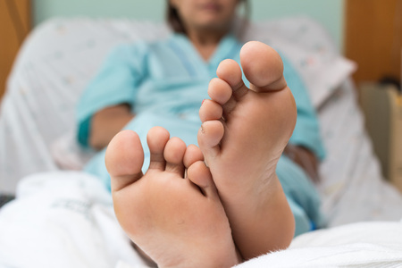 Feet of a young woman (Patient) sick  relax in bed close up