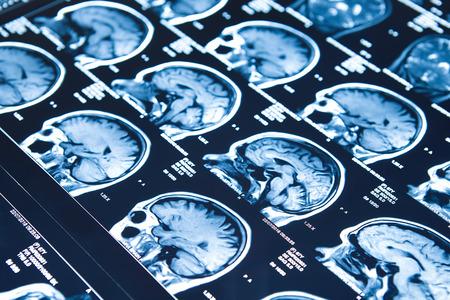 Primer de una tomografía computarizada de cerebro de mujer de 67 años de edad. Foto de archivo