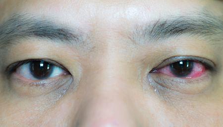Gesloten beeld van het oog van de Aziatische man in conjunctivitis, te vergelijken met het normale oog aan de andere kant. Stockfoto