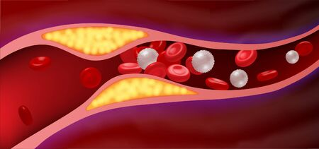 Arteries that are clogged with fat that causes blood clots are a leading cause of death.