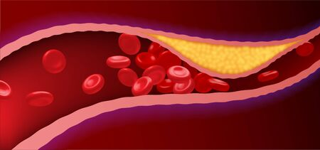 Arteries that are clogged with fat that causes blood clots are a leading cause of death. Illustration