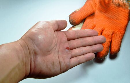 laceration: blister on hand because do not wear safety glove Stock Photo