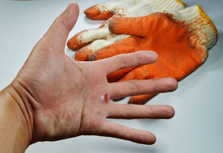 blister on hand because do not wear safety glove Stock Photo