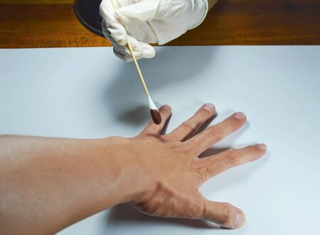 laceration: hand in medical rubber glove apply some remedy to the wound Stock Photo