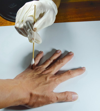 hand in medical rubber glove cleaning to the wound Stock Photo