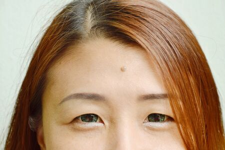 mole in middle of Asian woman forehead shows physiognomy