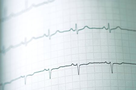 fall arrest: Detail of an electrocardiogram in paper