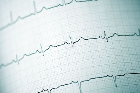 Detail of an electrocardiogram in paper Stock Photo - 5871789
