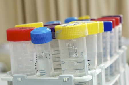 genomic: forefront of tubes in a rack used for analysis