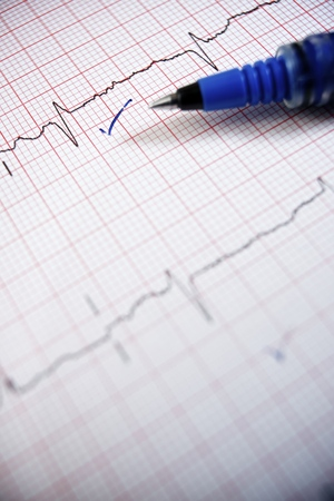 Close up of an electrocardiogram in paper form. photo
