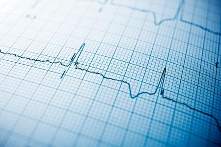 corazones azules: Cierre de un electrocardiograma en papel. Foto de archivo