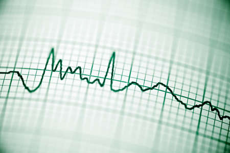 electrocardiograph: Close up of an electrocardiogram in paper form. Stock Photo