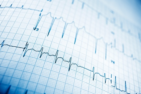 Close up of an electrocardiogram in paper form. Archivio Fotografico