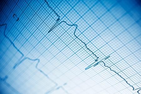 printout: Close up of an electrocardiogram in paper form. Stock Photo