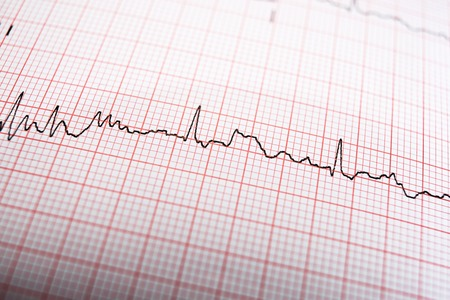 Close up of an electrocardiogram in paper form. Standard-Bild