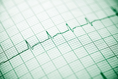 Close up of an electrocardiogram in paper form. Imagens