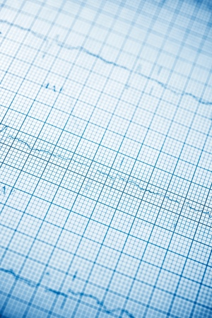 Close up of an electrocardiogram in paper form. Standard-Bild - 124235436