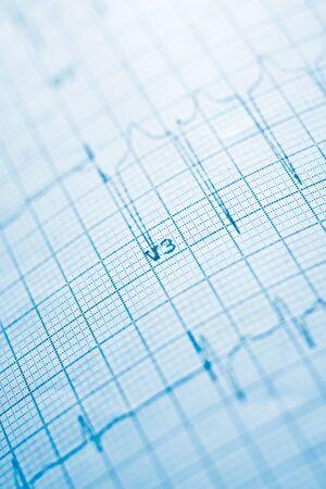Nahaufnahme eines Elektrokardiogramms in Papierform.