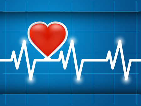 tachycardia: Heartbeat captured on cardiograph. Frequency, Wave Heart