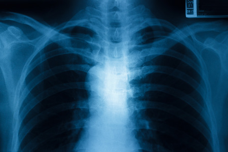 x rays negative: X-Ray Image Healthy Chest