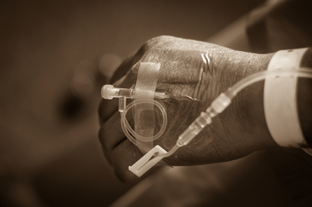 intravenous: Saline intravenous solution in a patients hand,sepia filtered. Stock Photo