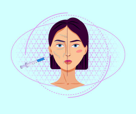 Antiaging collagen injections illustration. Mesotherapy procedures to eliminate wrinkles cosmetological lifting face plastic surgery with surgical aging delay beautiful vector correction. Illustration