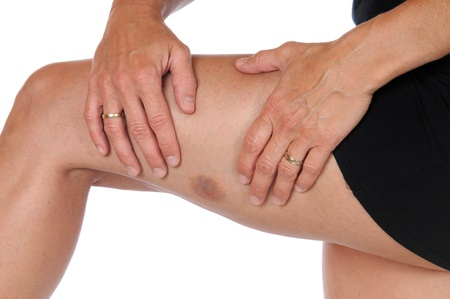 hematoma: Young woman with a hematoma at her upper thighs