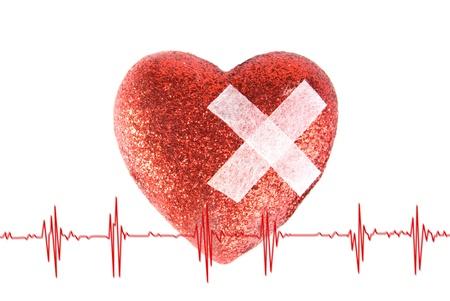 Le coeur est coinc� avec un pl�tre et cardiogramme